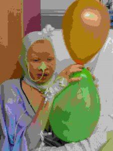 albinismo cristina