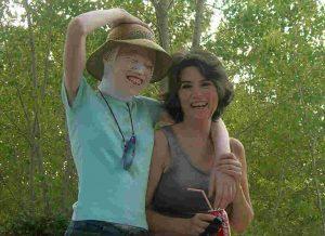 carmen cristina albinismo