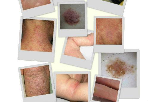 El tratamiento atopicheskogo de la dermatitis a los niños de 3 años