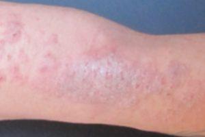 liquenificación dermatitis