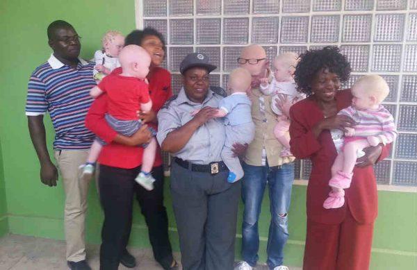 albinismo mozambique