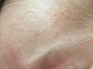 acné neonatal
