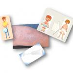 Día Mundial de la Dermatitis Atópica: toda la información sobre la enfermedad