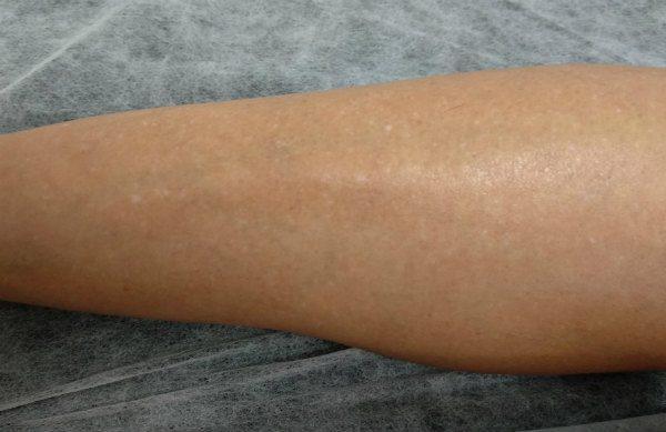 Manchas blancas en la piernas y muslos
