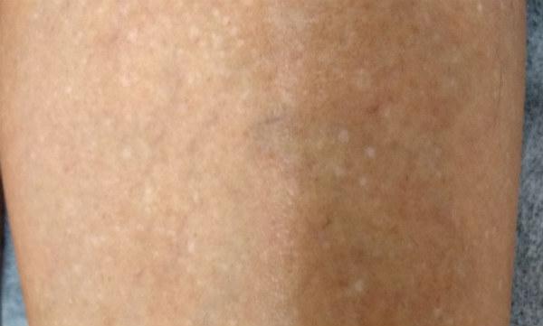 Tengo manchas blancas en la cara