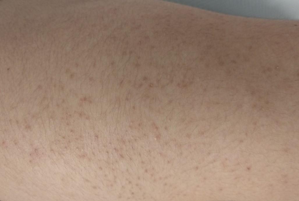 espinillas en las piernas tratamiento