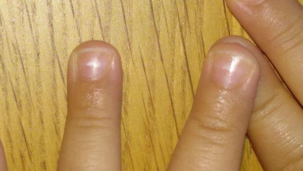manchas blancas uñas
