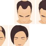 Minoxidil oral para la alopecia androgenética