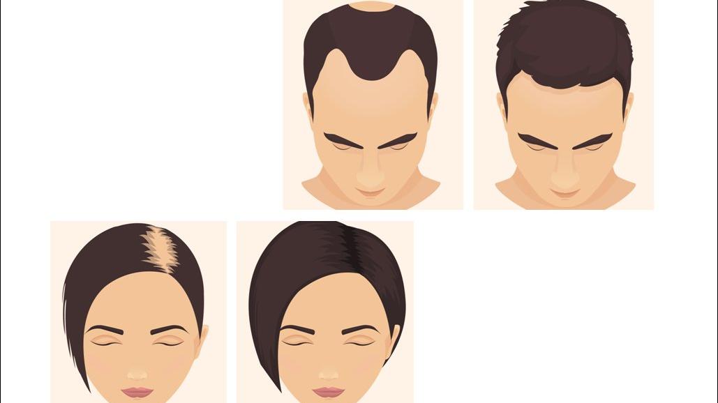 Minoxidil Oral Para La Alopecia Androgenetica Doctora Lorea Bagazgoitia Dermatologia