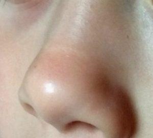 linea transversal nasal